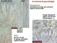 Orbilia-aurantiorubra-130127-ZJ-MCol-02JJ