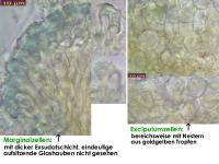 Orbilia-aurantiorubra-130106-ZJ-MCol-03JJ