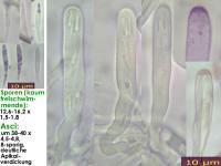 Orbilia-vinosa-131214-MCol-01JJ