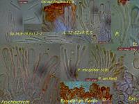 Orbilia-vinosa-090207-MCol-01JJ