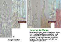 Eriopezia-caesia-150219-WS-MCol-04JJ