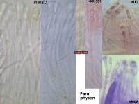 Coenogonium-pineti-150325-FPr-MCol-03JJ
