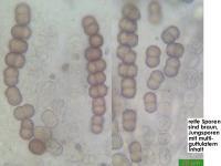 Dialonectria-cosmariospora-150331-MCol-01JJ