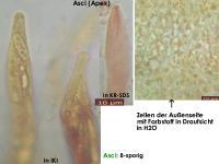 Nectria-pseudopeziza-150201-TR-MCol-02JJ