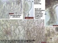 Mollisia-albogrisea-(piceae)-150514-FPr-FP171-MCol-03JJ
