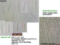 Lachnum-clavigerum-(Rubus-idaeus)-150614-MCol-01JJ