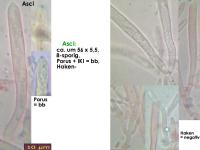 Lachnum-clavigerum-(Rubus-idaeus)-150614-MCol-02JJ