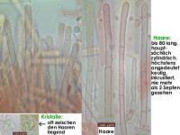 Lachnum-clavigerum-(Rubus-idaeus)-150614-MCol-04JJ