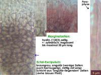 Pyrenopeziza-chamaenerii-150613-TR-MCol-04JJ