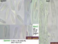 Pyrenopeziza-rubi-130920-MCol-01J