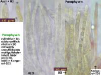 Pyrenopeziza-rubi-130920-MCol-02J