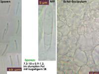Orbilia-rectispora-150711-TR-MCol-01JJ