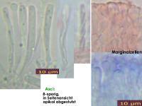 Orbilia-rectispora-150711-TR-MCol-02JJ