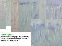 Orbilia-rectispora-150711-TR-MCol-03JJ