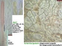 Hymenoscyphus-caudatus-cf-(OCI=0)-151105-MCol-02JJ