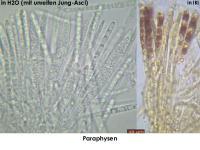 Hymenoscyphus-caudatus-cf-(OCI=0)-151105-MCol-03JJ