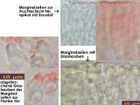 Orbilia-cardui-cf-(Solidago)-150629-MCol-04JJ