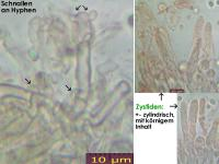 Stypella-vermiformis-140628-AGue-MCol-02JJ