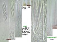 Mollisia-pseudopalustris-160102-TR-FP216-MCol-02JJ