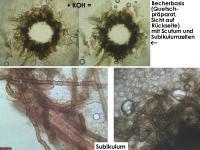 Mollisia-pseudopalustris-160102-TR-FP216-MCol-05JJ