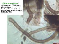 Mollisia-scopiformis-(pyrenopezizoides)-160220-TR-FP233-MCol-04JJ