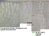 Hyalorbilia-inflatula-160318-WS-MCol-02JJ