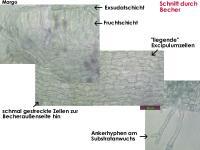 Hyalorbilia-inflatula-160318-WS-MCol-03JJ