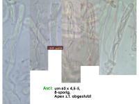 Orbilia-aurantiorubra-160206-RF-MCol-02JJ