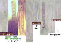 Orbilia-tremulae-130628-MCol-01JJ