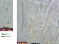 Orbilia-xanthostigma-160520-MCol-01JJ