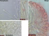 Orbilia-xanthostigma-160520-MCol-03JJ