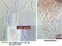 Hyalorbilia-helicospora-160730-MCol-01JJ