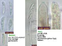 Hymenoscyphus-albopunctus-160813-MCol-01JJ