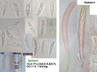 Hymenoscyphus-albopunctus-cf-(crz+)-160811-MCol-01JJ
