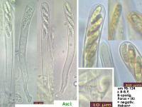 Claussenomyces-prasinulus-160807-FP307-MCol-02JJ