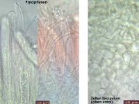Claussenomyces-prasinulus-160807-FP307-MCol-03JJ