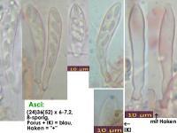 Naeviopsis-spec-(Castanea-sativa)-141015-TR-MCol-02JJ