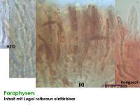 Naeviopsis-spec-(Castanea-sativa)-141015-TR-MCol-03JJ