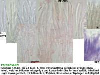 Pyrenopeziza-spec-(Lycopus)-160903-MCol-03JJ