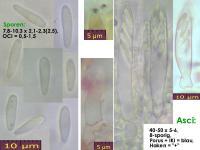 Pyrenopeziza-urticicola-cf-(P-mit-Inhalt_H=kurz)-130810-MCol-01J