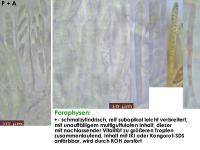 Pyrenopeziza-urticicola-cf-(P-mit-Inhalt_H=kurz)-130810-MCol-02J