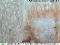 Pyrenopeziza-urticicola-cf-(P-mit-Inhalt_H=kurz)-130810-MCol-03J