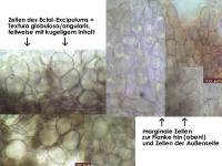 Pyrenopeziza-urticicola-cf-(P-mit-Inhalt_H=kurz)-130810-MCol-04J.