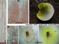 Mollisia-albogrisea-(piceae)-160730-FP301-MCol-03JJ