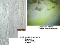 Mollisia-albogrisea-(piceae)-160808-MCol-02JJ