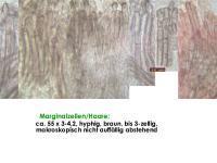 Mollisia-olivaceocinerea-(nodosa)-160813-FPr-FP311-MCol-04JJ