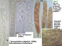 Claussenomyces-xylophilus-170205-FPr-FP341-MCol-03JJ