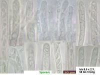 Orbilia-trapeziformis-170217-MCol-01JJ
