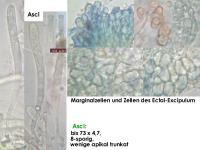 Orbilia-trapeziformis-170217-MCol-03JJ