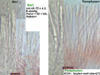 Mollisia-cinerea-170303-ChriMoeh-FP354-MCol-02JJ
